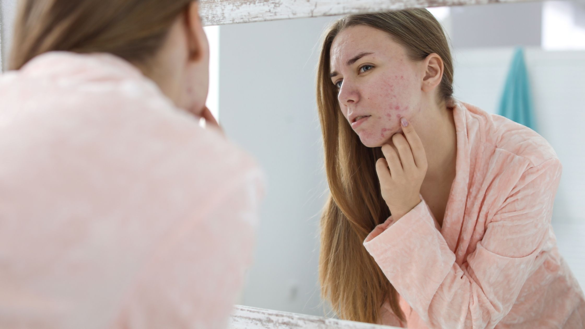Vrouw met acné