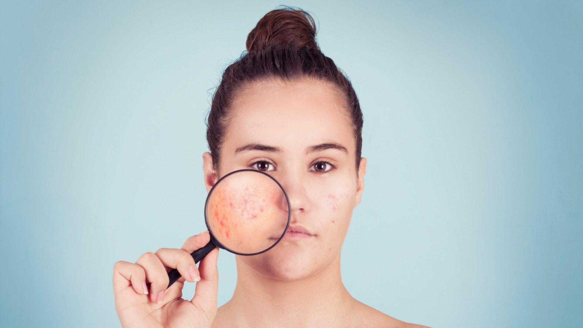 Blog acné
